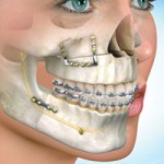 Dental Clinic in Jaipur