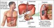 Gastroscopy Colonoscopy ERCP Stone Clinic in Jaipur